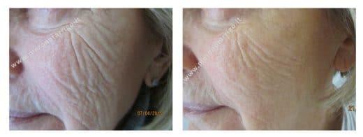 Ringiovanimento della pelle con acido ialuronico - Dott. Piero Notarrigo - Medicina Estetica San Lazzaro