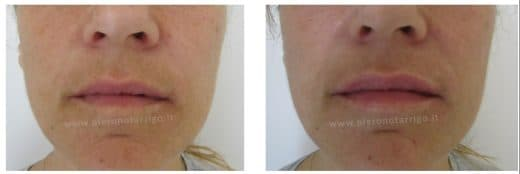 Ringiovanimento delle labbra - Dott. Notarrigo Medicina Estetica Bologna