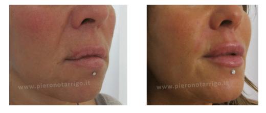 Ringiovanimento labbra - Dott. Notarrigo - Medicina Estetica Bologna