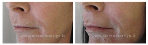 Ringiovanimento labbra - Dott. Piero Notarrigo - Medicina Estetica Bologna