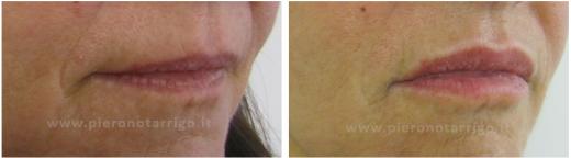 Ringiovanimento-labbra-Dott.-P-Notarrigo-Medicina-Estetica-San-Lazzaro-di-Savena-Bo