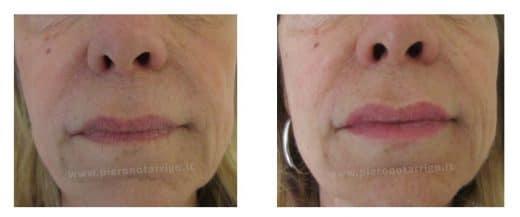 Ringiovanimento labbra con acido ialuronico - Dott. Piero Notarrigo - Medicina Estetica Bologna