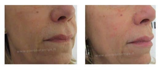 Ringiovanimento labbra con acido ialuronico - Dott. Piero Notarrigo - Medicina Estetica San Lazzaro
