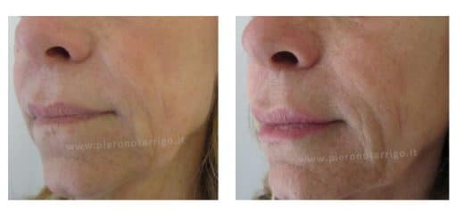 Ringiovanimento labbra con acido ialuronico - Dott. Piero Notarrigo - Medicina Estetica San Lazzaro di Savena