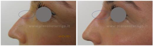 Rinofiller-Dott.-P-Notarrigo-Medicina-Estetica-Bologna