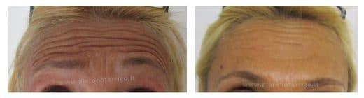 Spianamento delle rughe della fronte con botulino - Dott. Notarrigo - Medicina Estetica San Lazzaro