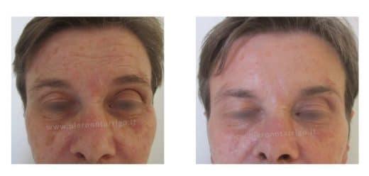 Spianamento delle rughe frontali con tossina botulinica - Dott. Piero Notarrigo - Medicina Estetica San Lazzaro Bologna