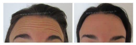 Spianamento fronte e ali di gabbiano - Dott. Notarrigo - Medicina Estetica San Lazzaro
