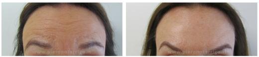 Spianamento delle rughe della fronte con tossina botulinica - Dott. Piero Notarrigo - Medicina Estetica Bologna