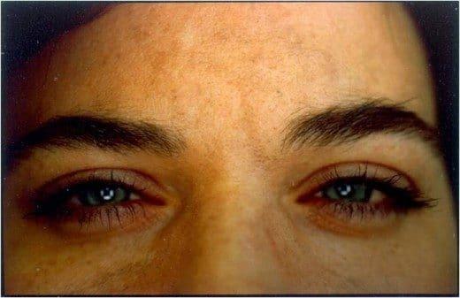 Tossina Botulinica Fronte dopo trattamento Dott. Notarrigo Medicina Estetica San Lazzaro Bologna