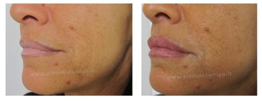 Trattamento anti ageing delle labbra - Dott. Notarrigo - Medicina Estetica San Lazzaro