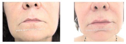 Trattamento di labbra ipotoniche con acido ialuronico- Dott. Piero Notarrigo - Medicina Estetica Bologna