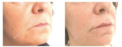 Trattamento di labbra ipotoniche con acido ialuronico - Dott. Piero Notarrigo - Medicina Estetica San Lazzaro (BO)