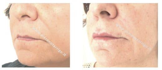 Trattamento di labbra ipotoniche con acido ialuronico - Dott. Piero Notarrigo - Medicina Estetica San Lazzaro di Savena (BO)
