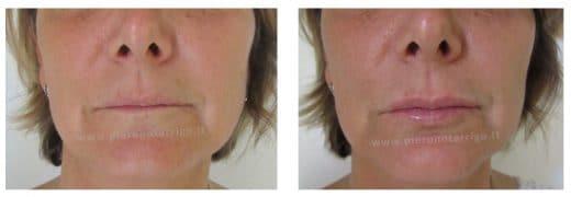 Trattamento di labbra sottili con Restylane Kysse - Dott. Piero Notarrigo - Medicina Estetica San Lazzaro di Savena (BO)