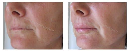 rattamento di labbra sottili con filler di acido ialuronico - Dott. Piero Notarrigo - Medicina Estetica Bologna