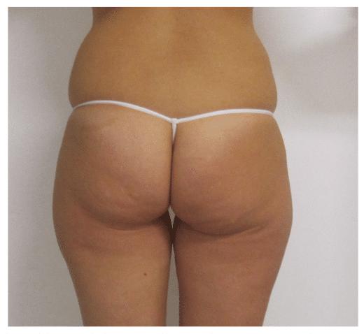 Cellulite Medicina Estetica Bologna