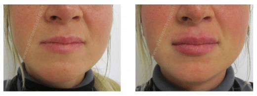 correzione asimmetria labbro superiore con aumento di volume - Dott. Piero Notarrigo Medicina Estetica Bologna