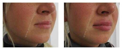 correzione asimmetria labbro superiore con aumento di volume labbra- Dott. Piero Notarrigo Medicina Estetica Bologna