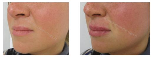 correzione asimmetria labbro superiore con aumento di volume labbra- Dott. Piero Notarrigo Medicina Estetica San Lazzaro
