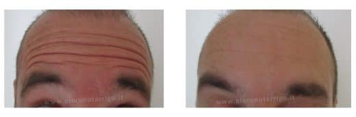 tossina botulinica uomo rughe frontali - Dott. Notarrigo - Medicina Estetica Bologna