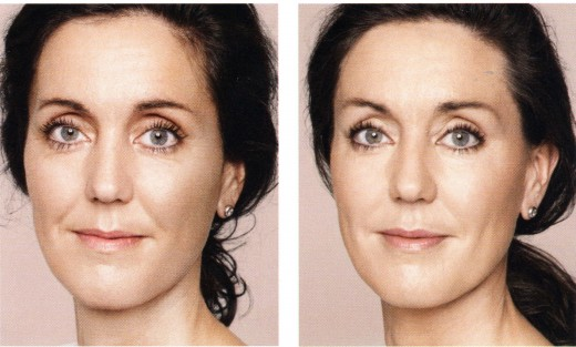 Illumina la pelle con acido ialuronico