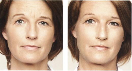 Illumina il viso con acido ialuronico