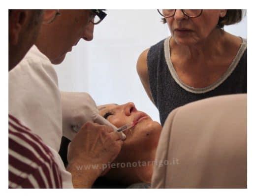Corso pratico filler labbra acido ialuronico - Dott. Piero Notarrigo - Medicina Estetica Bologna