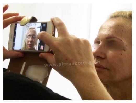 Tossina Botulinica - Dott. Piero Notarrigo - Medicina Estetica San Lazzaro di Savena (BO)