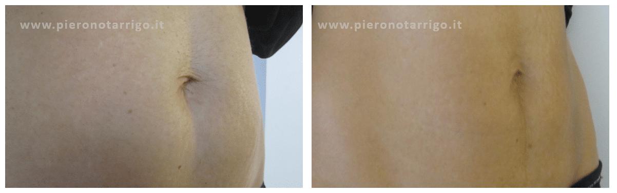 Prostrolane Inner B - Dott. Piero Notarrigo - Medicina Estetica Bologna