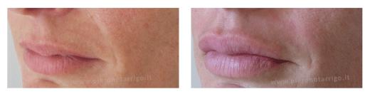 Ingrandimento delle labbra con acido ialuronico - Dott. Notarrigo - Medicina Estetica San Lazzaro