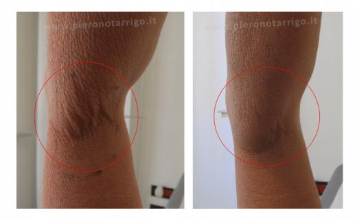 Rassodamento braccia - Dott. Notarrigo - Medicina Estetica Bologna